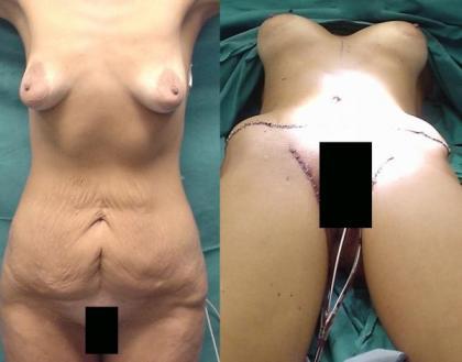 Νέα μέθοδος στην πλαστική χειρουργική, μαστών, κοιλίας με μια τομή