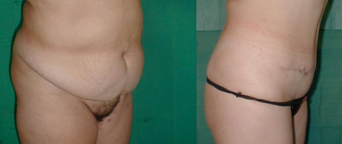 επίπεδη κοιλιά,αφαίρεση λίπους