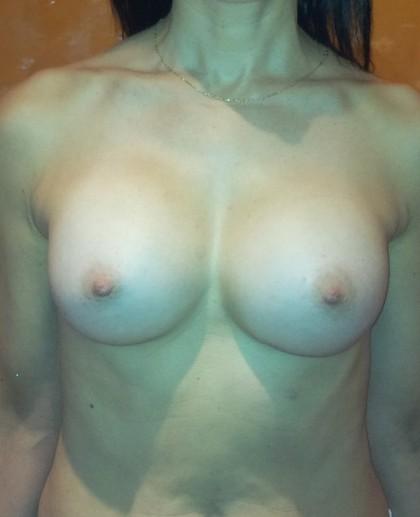 στήθος,αύξηση,υπομάστιος,τομή,αόρατη τομή,αύξηση μαστού