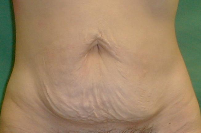 εγκυμοσύνη,καισαρική,κοιλιοπλαστική