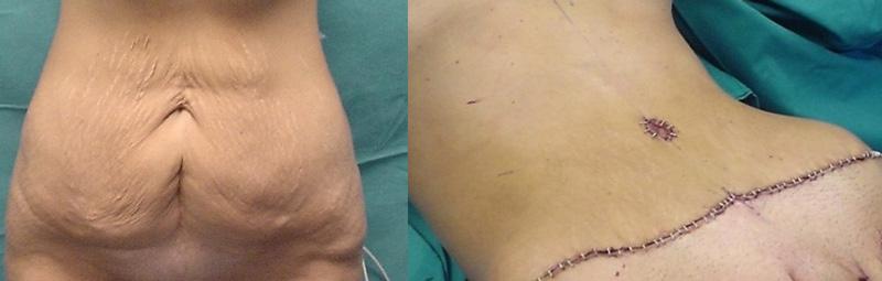ραγάδες κοιλιάς,χαλάρωση δέρματος από εγκυμοσύνη