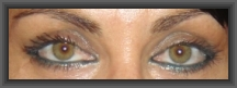 plastic surgery photo gallery,blepharoplasty,medical turism cheap plastic surgery greece