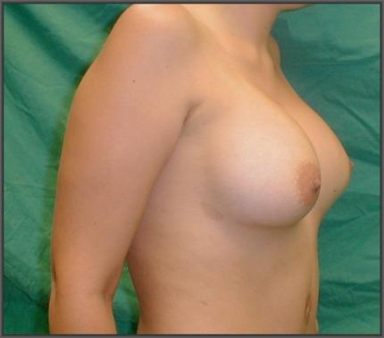 simultaneous abdominoplasty breast augmentation, no breast scars, medical turism in greece,cheap abdominoplasty