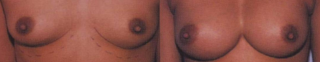 breast augmentation ,silicone implants,save money plastic surgery