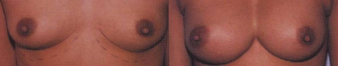 breast augmentation ,silicone implants,save money plastic surgery