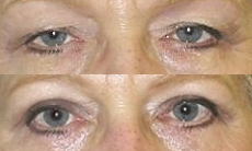 Blepharoplasty,treatment in greece
