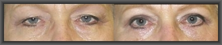 blepharoplasty,cheap plastic surgery,medical tourism greece,malar bags,tear trough deformity