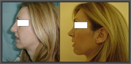 rhinoplasty,sinus surgery,medical tourism in Greece,cheap rhinoplasty,save money plastic surgery
