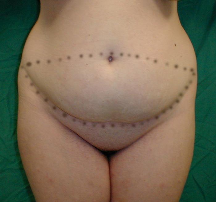 tummy tuck,abdominoplasty