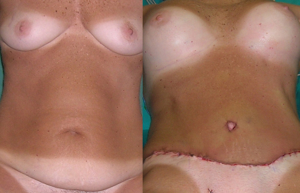 simultaneus abdominoplasty and breast augmentation,plastic surgery in greece,Breast enhancement and tummy tuck