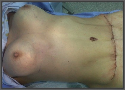 simultaneous abdominoplasty breast augmentation, no breast scars, medical turism