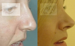 rhinoplasty,sinus surgery,nose job,cheap nose job,low cost nose,medical turism in Greece