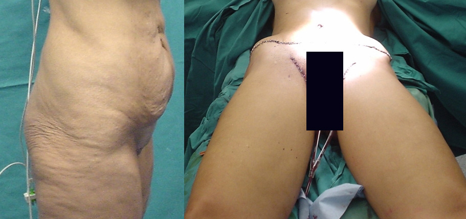 thigh lift,fat deposits,femoral