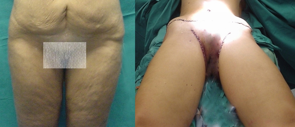 thigh lift,fat deposits,femoral,skin laxity