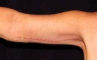 braccia,adipe,cute sciolta,clinica chirurgia plastica atene grecia