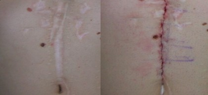 plastic surgery athens,wound treatment athens,injuries athens